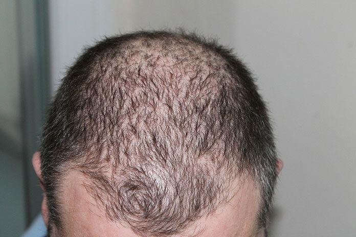 Zdrowa skóra głowy